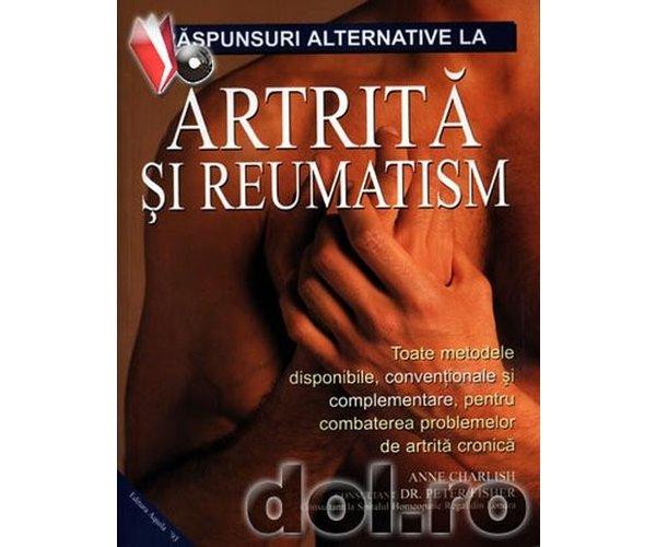 Artrita reumatoida la tineri